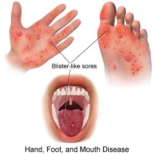 Photo Credit: http://www.drugs.com/cg/hand-foot-and-mouth-disease-inpatient-care.html